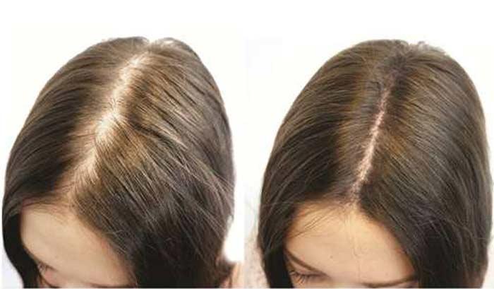 мытье волос содой отзывы врачей