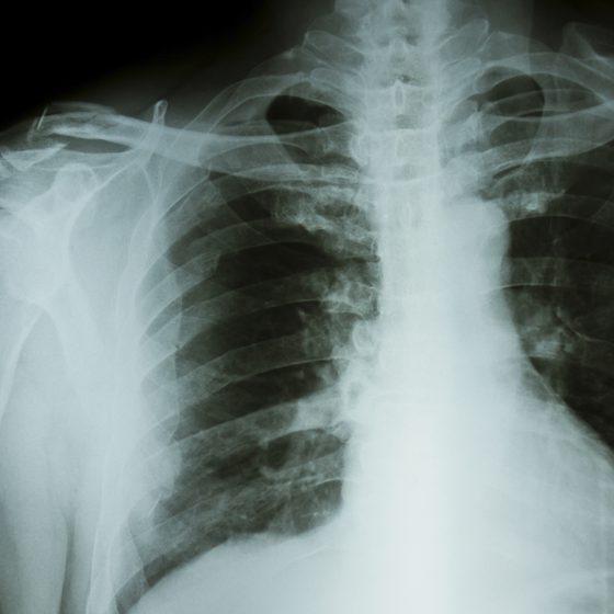 Активная стадия туберкулеза