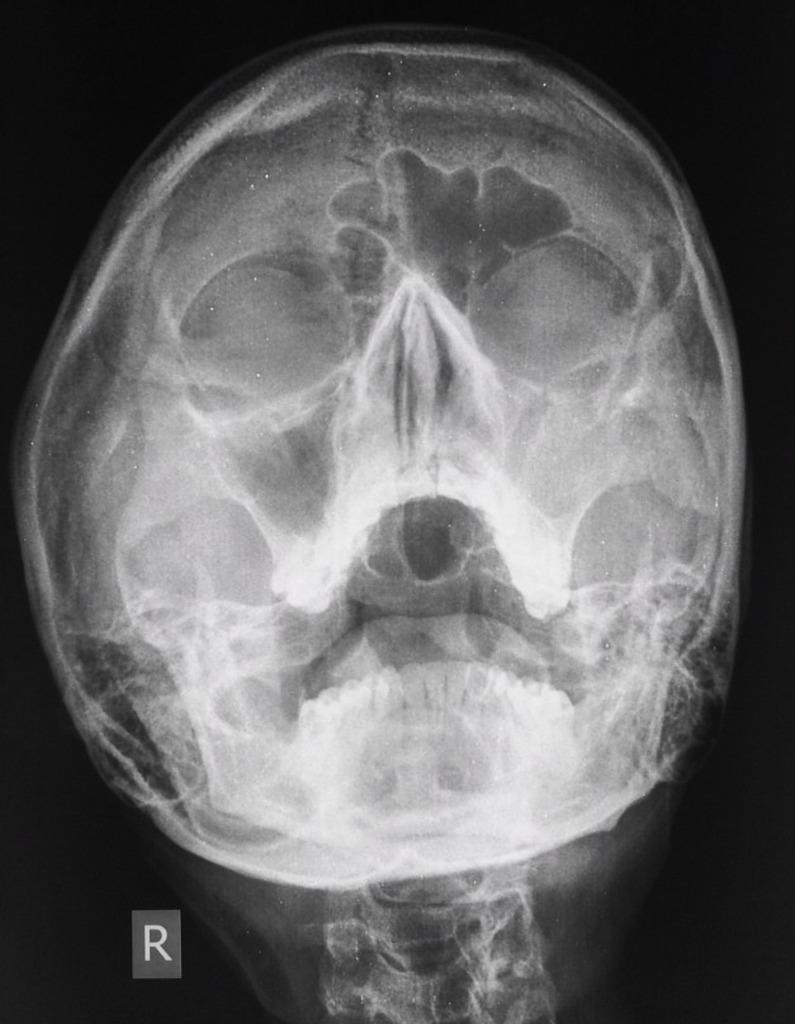 можно ли беременным делать рентген гайморовых пазух
