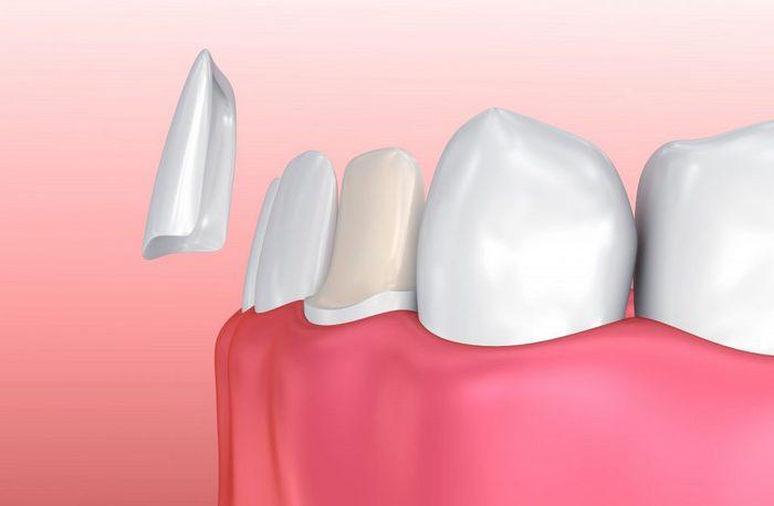 съемные пластины для выравнивания зубов у взрослых