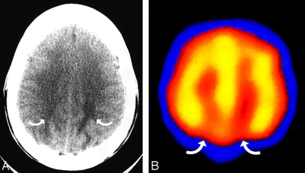 острая гипертоническая энцефалопатия мкб