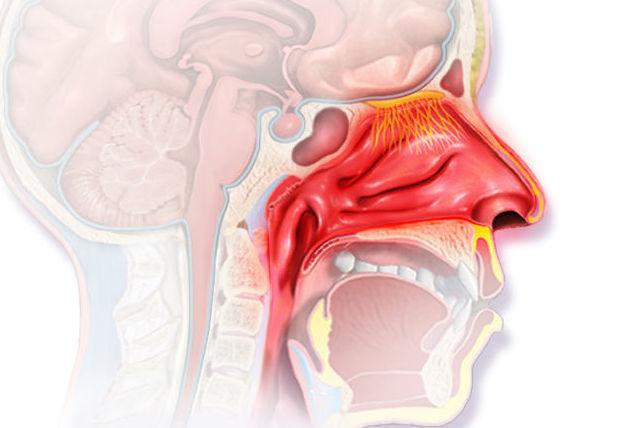 воспаление в пазухах носа