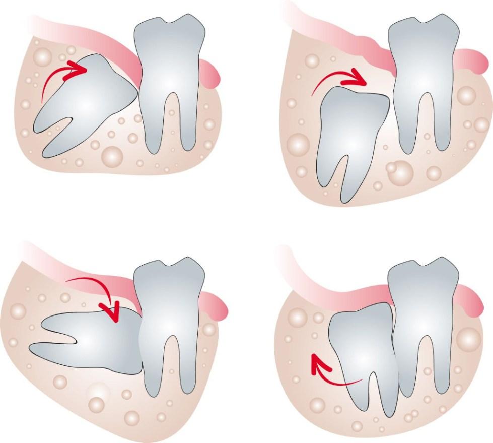 обязательно ли удалять зуб мудрости при установке брекетов