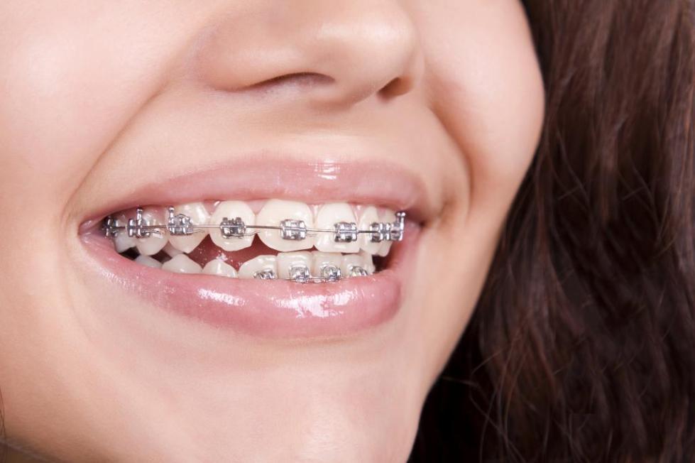 обязательно ли удалять зуб мудрости при установке брекетов если они выросли