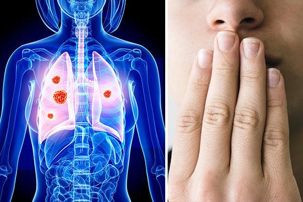 Рак легкого классификация по тнм