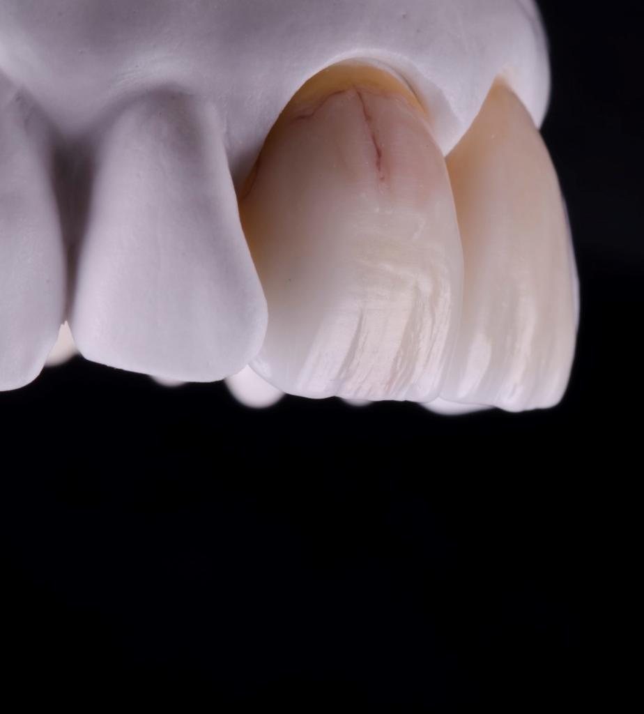 форма зубов моделирование