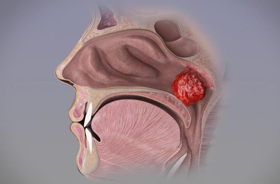 аденотомия эндоскопическая