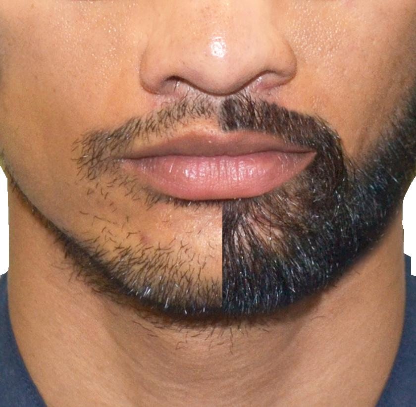 Стоимость пересадки волос на бороду