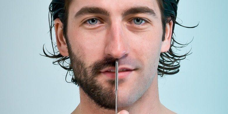Последствия от пересадки волос на бороду