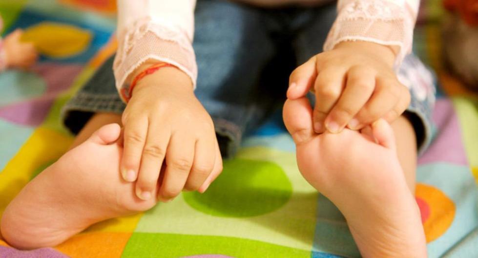 как лечить грибок стопы у детей