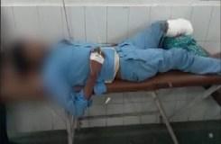 मरीज का पैर काटकर बना दिया तकिया