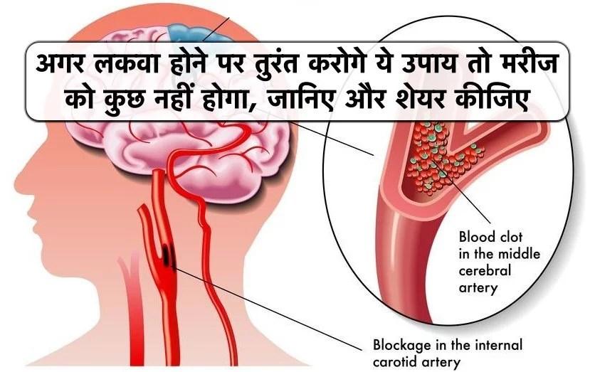 Premenstrual-Symptoms-and-its-Ayurvedic-Treatment