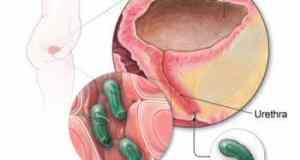 uti-urinary tract infection bacteria