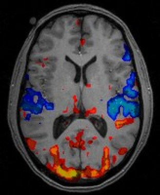(fMRI scan of human brain. Image Credit psychcentral.com)