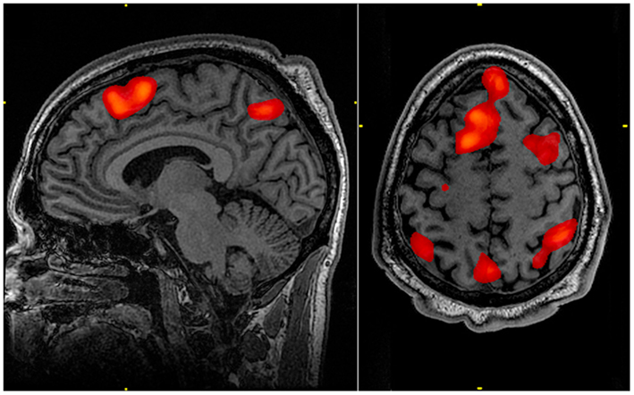 FMRI_scan_during_working_memory_tasks