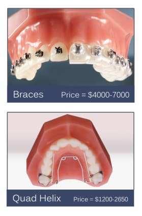 Orthodontic Solutions to Thumb Sucking and their Cost 2