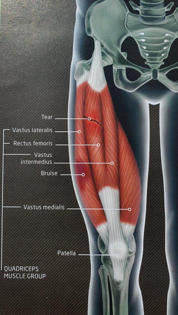 muscle strain or tear kildare