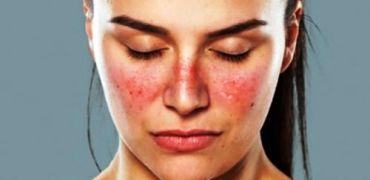 Doenças autoimune: aprenda o que é Lúpus
