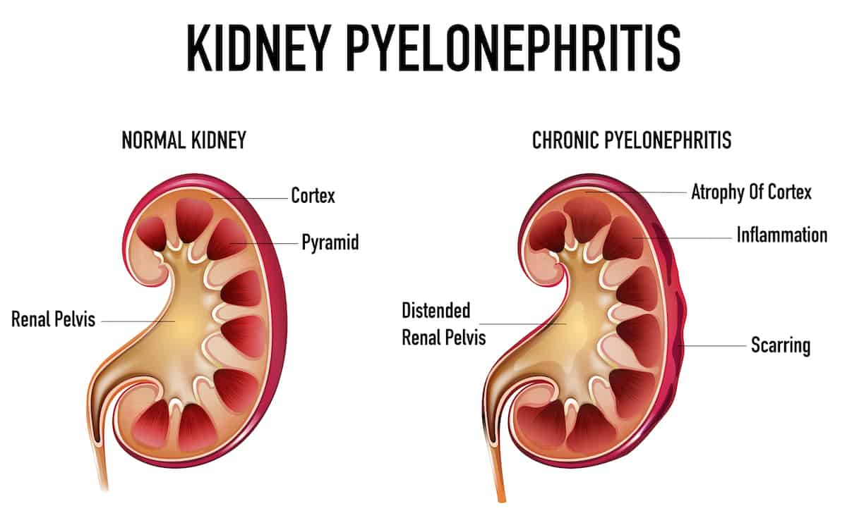 Topic Pyelonephritis