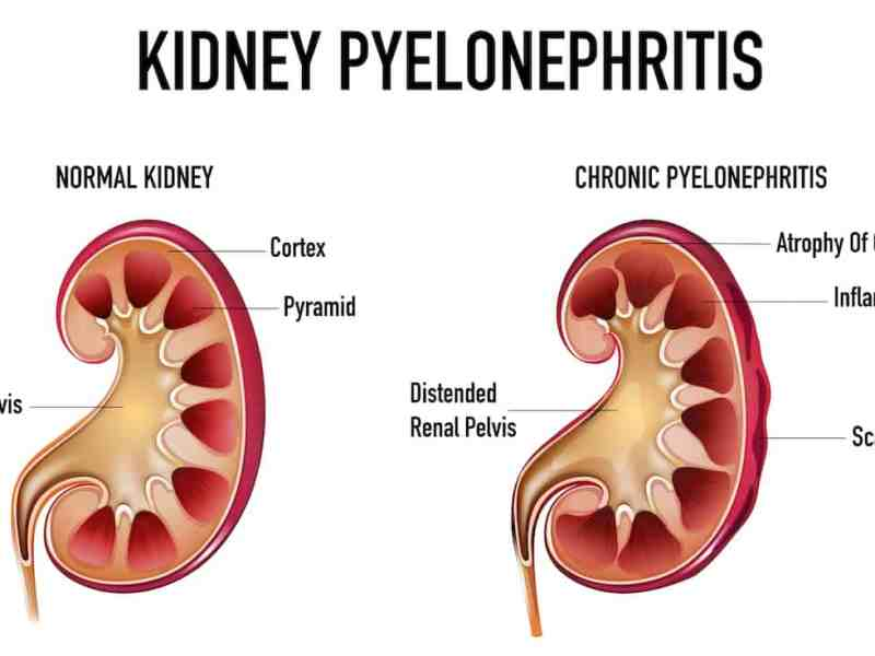 Topic Pyelonephritis