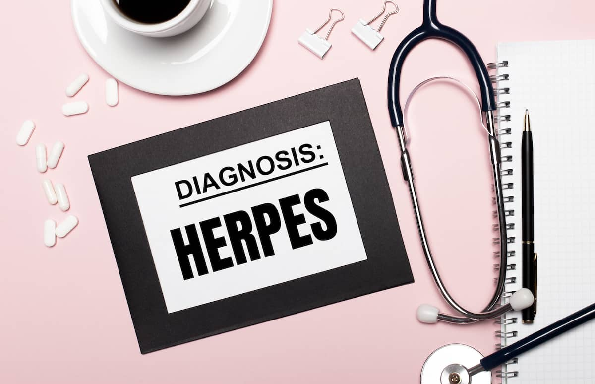 Herpes genitalia: A never ending viral infection