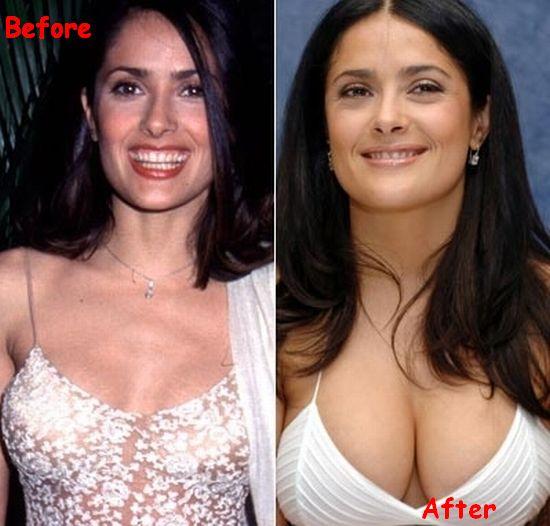 Salma-Hayek-Breasts-Implant