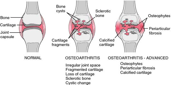dog arthritis, canine arthritis