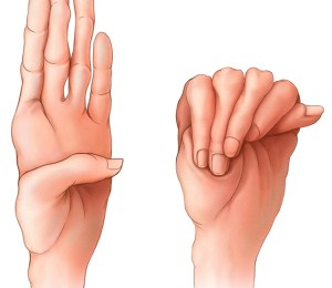 Finger length in Marfan syndrome Image credit: http://www.mayoclinic.org/diseases-conditions/marfan-syndrome/symptoms-causes/dxc-20195415