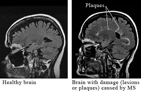 Cerebral MRI lesions are 6 times less frequent in primary progressive, compared to relapsing-remitting, patients who become progressive later on (Thompson et al 1991).