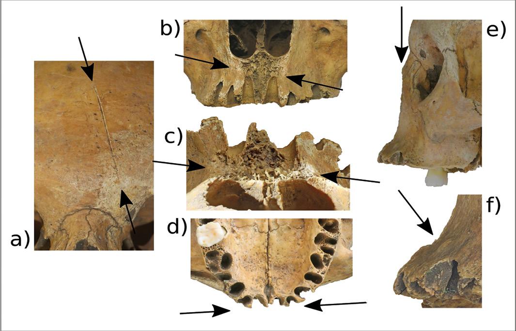 Judicial facial mutilation in Anglo-Saxon England?
