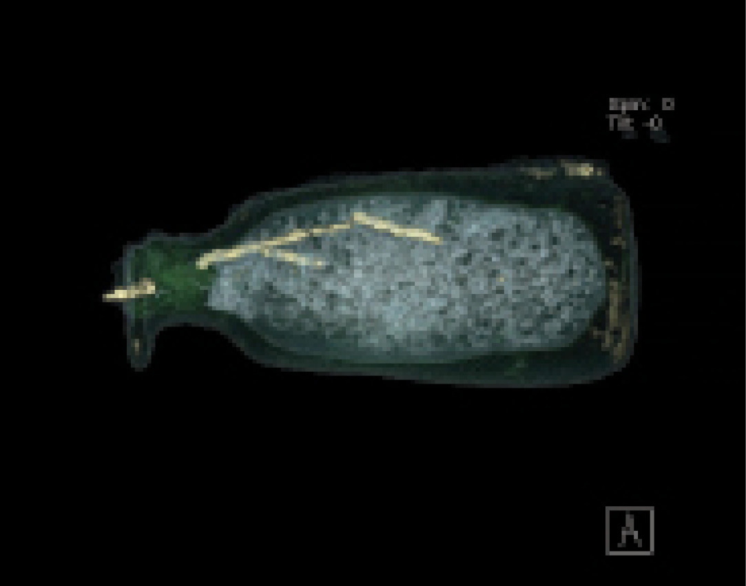 below A CAT scan of one of the alabastrons, which revealed a rod in several fragments inside the vessel. This was part of the post-excavation analysis conducted by the firm BCRX. right A virtual view inside a skyphos found in the burial chamber. A CAT scan revealed a cup within the artefact, but it also helps to reveal the arrangement of