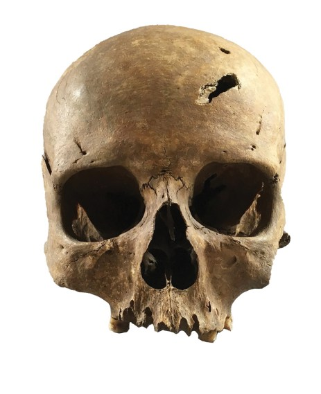 BELOW This skull belonged to a woman who was more than 60 years old, and whose life came to a brutal end in the 14th century, demonstrated by several deadly traumas.