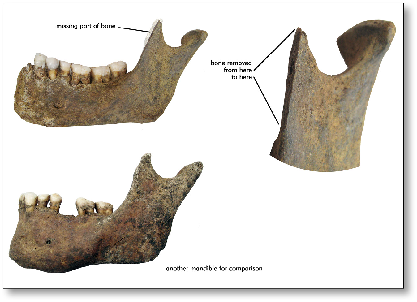 top A human mandible found during the excavation. A strip of bone has been sliced off by a sharp implement, perhaps a sword. above This tibia (shinbone) has been cut apart by a sharp implement. Could it be that someone sheltering behind a shield exposed their knee to a downwards sword stroke?