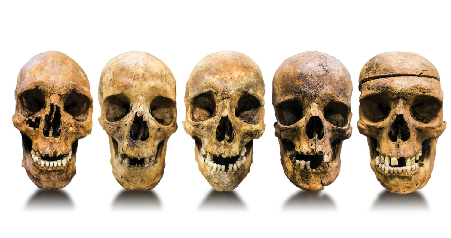 below Facing the past: skulls of five of the men whose graves were excavated by the project team. Were they prisoners of war or civilian convicts?