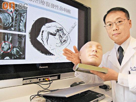 醫知健:揭面割瘤治鼻咽癌 - 太陽報