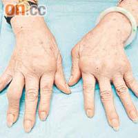 醫知健:嚴重風濕病折壽34年 - 太陽報