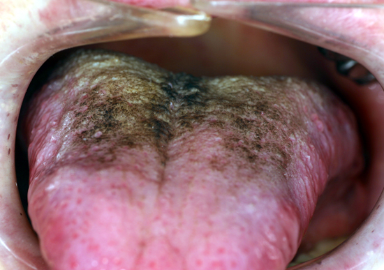 Hairy tongue may present clinically with different colors.