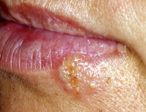 Herpes simplex lesions are mainly found on the perioral tissues.