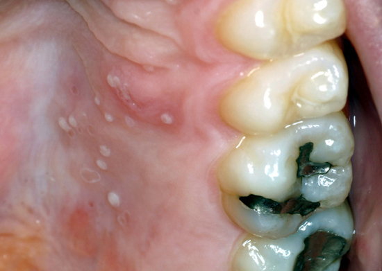 Herpes simplex lesions can be found intraorally.