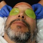 Dermal Micro-Needling Wrinkle Treatment
