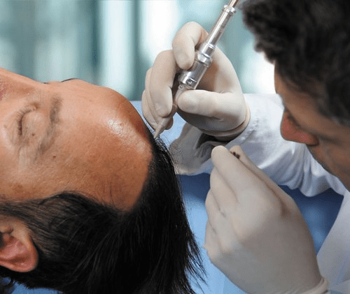 Surgery for big forehead