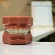 7 Signs That Your Child May Need Braces