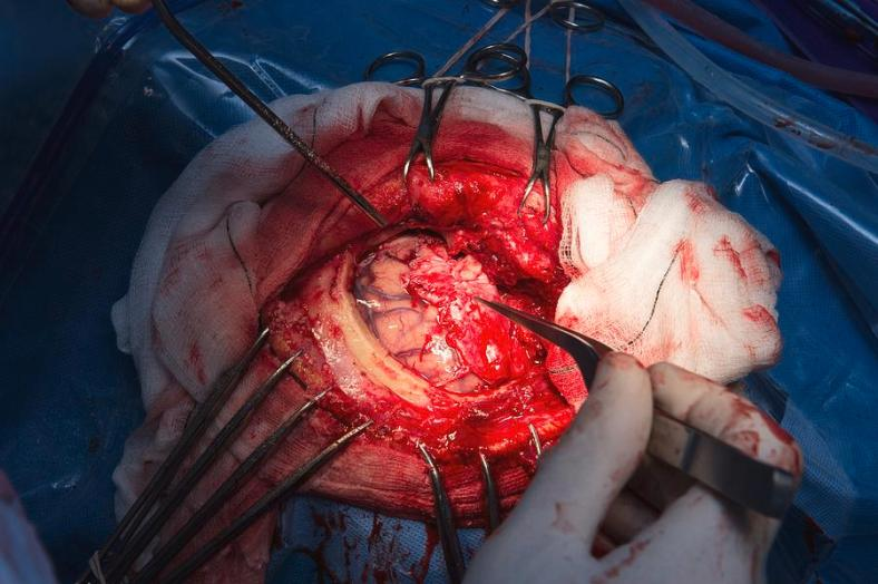 2-craniotomy-brain-surgery-dr-p-marazziscience-photo-library