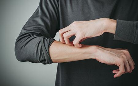men-itching-skin