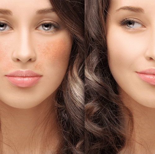 best skin lightening creams for hyperpigmentation