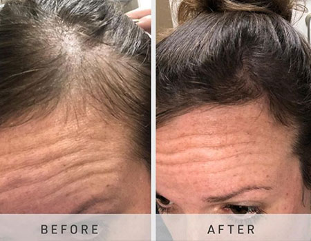 irestore hair growth review