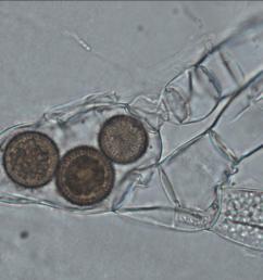 fungi cell [ 2048 x 1073 Pixel ]