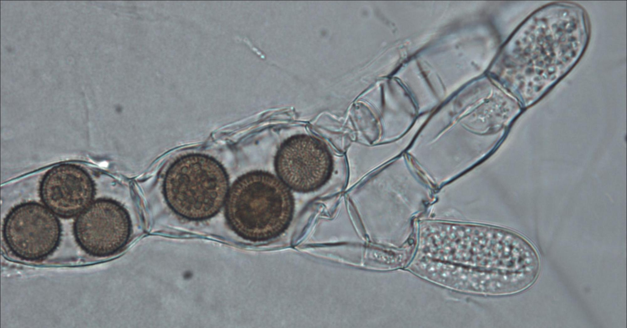 hight resolution of fungi cell