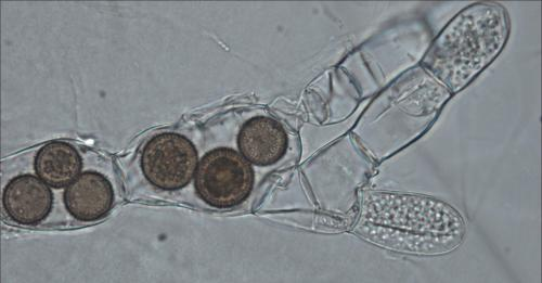 small resolution of fungi cell