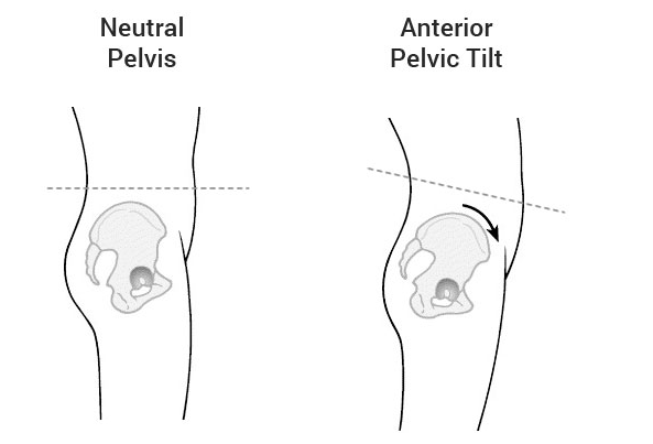 Fix an Anterior Pelvic Tilt: Best Stretches and Exercises